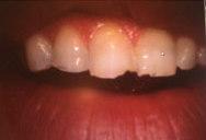 Grinding teeth Newark DE
