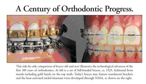 orthodontics timeline Middletown DE