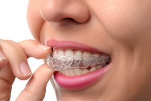 Invisalign for the Holidays Middletown DE