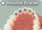 Find out more about Invisible Braces