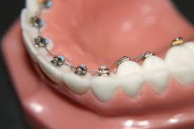 lingual braces Dr. Gordon C. Honig, DMD Newark Middletown DE